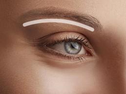 Augenbrauenlifting und Augenbrauen anheben für ein frisches Aussehen in Zuchwil
