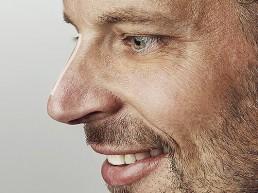Höckernase und Nasenrücken korrigieren und angleichen durch Hyaluronsaeure bei Dr Tschager