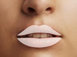 Lippen auffüllen und volle Lippen durch ästhetische Behandlung bei Solothurn