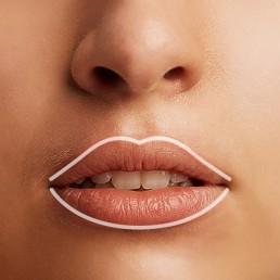 Lippenkontur durch Hyaluronsäure für sinnliche Lippen in Bern