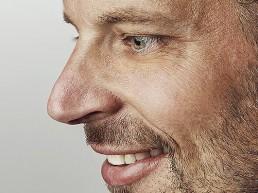 Nasenkorrektur in Zuchwil