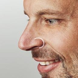 Nasenfalten entfernen durch Faltenbehandlung nahe Solothurn bei Dr Tschager