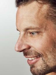 Nasenkorrektur Nase richten ohne OP in Zuchwil