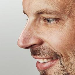 Nasenruecken begradigen mit einer Schönheitsbehandlung nahe Solothurn