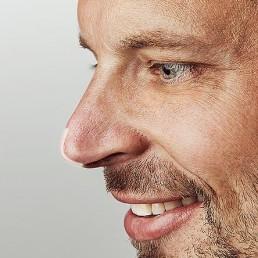 Nasenspitze anheben bei Dr. Tschager ohne OP