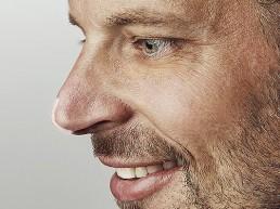 Nasenspritze anheben oder angleichen bei Dr Tschager