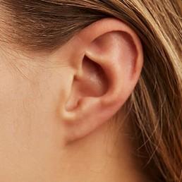 Segelohren entfernen schöne Ohren in Zuchwil