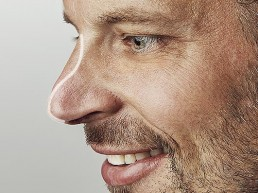 Nasenform korrigieren und Sattelnase durch Unterspritzung mit Hyaluronsaeure beheben